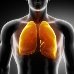 Life Insurance Approval with Asbestosis